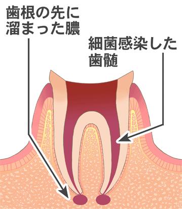 歯根の先に溜まった膿 細菌感染した歯髄